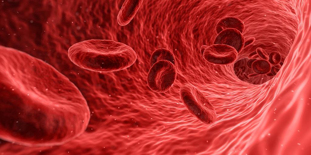 血管內血球模擬彩繪圖